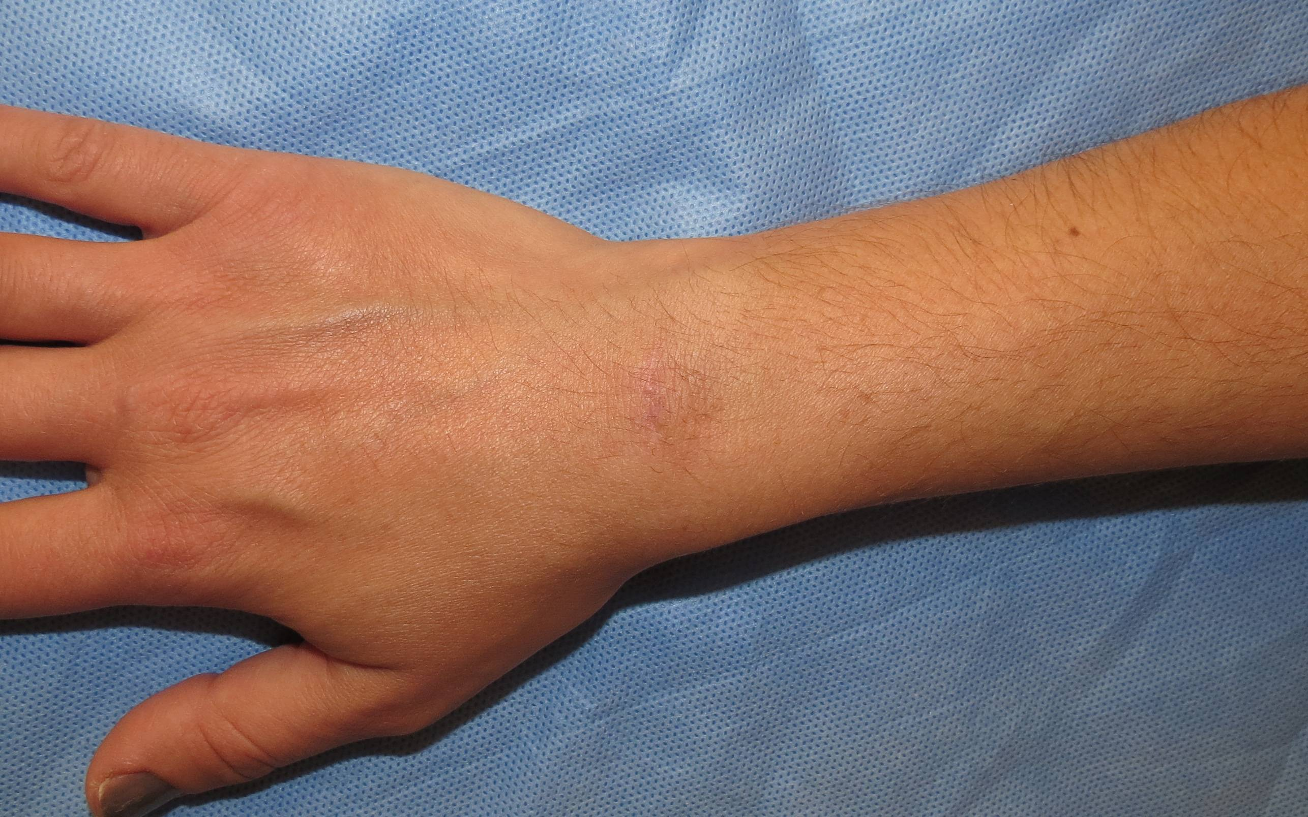 Гигрома - лечение в домашних условиях - Народные методы и 221