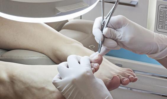 Недорогие средства от грибка ногтей список